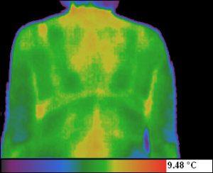 Termograma - spondiloza cervicala la inceputul tratamentului