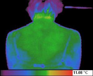 Termograma - spondiloza cervicala dupa 12 zile de la inceperea tratamentului