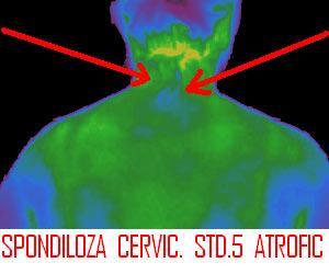 Cefalee secundara determinata de spondiloza cervicala