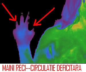 Maini si picioare reci - imagine termografica