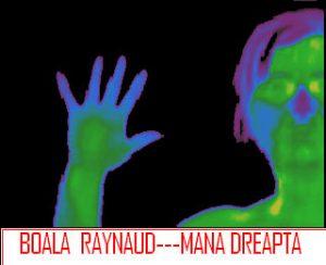 Boala raynaud - imagine termografica