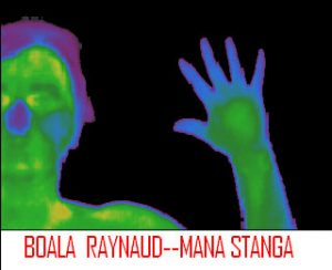 Sindrom Raynaud - mana stanga