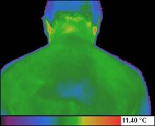 Spondiloza dorsala - imagine obtinuta prin termografie