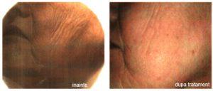 Riduri la fata inainte si dupa tratamentul estetic; comparatie intre imagini